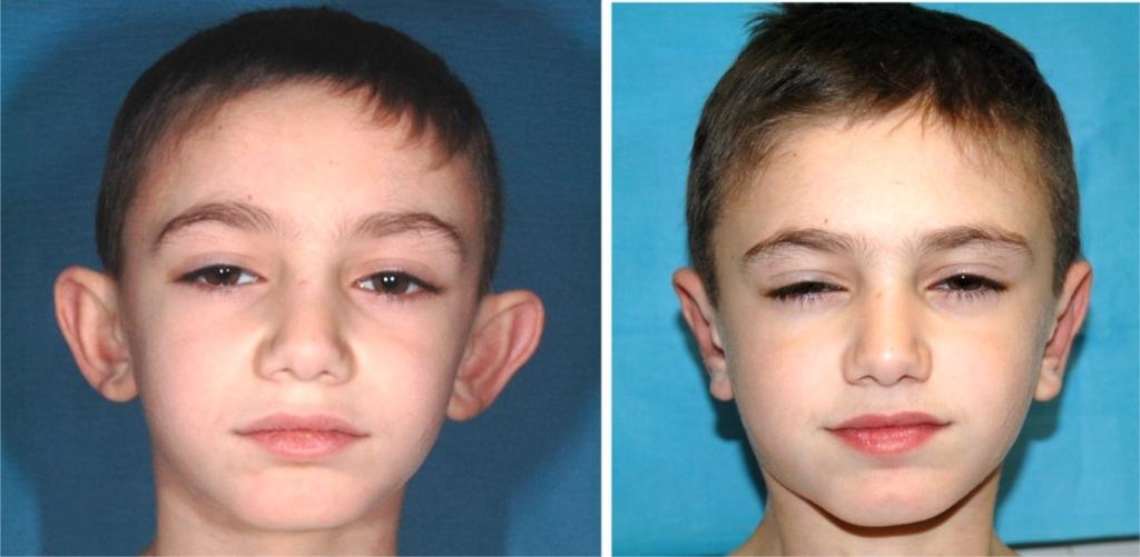 chirurgie esthétique oreilles