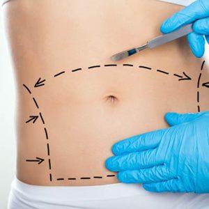 chirurgie abdominoplastie