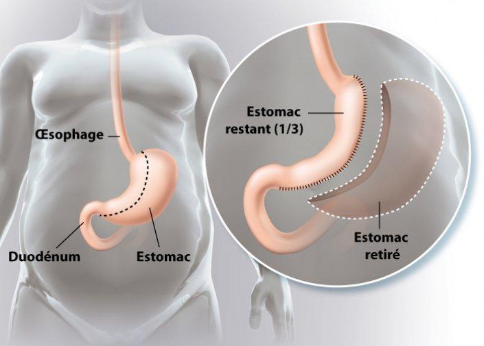sleeve gastrectomie tunisie