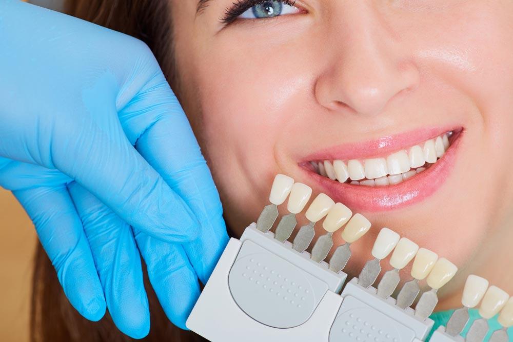 facettes dentaires prix tunisie