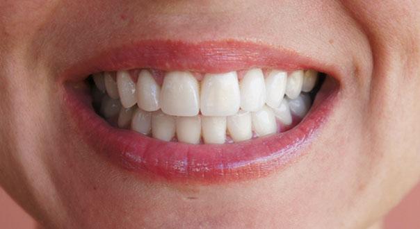 prothese dentaire tunisie
