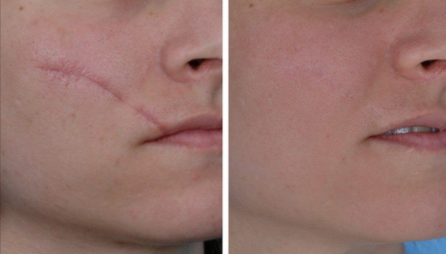 traitement cicatrice avant apres
