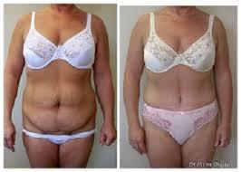 Chirurgie esthétique du ventre