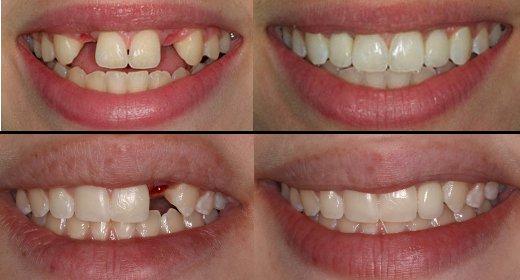 Implant dentaire avant apres