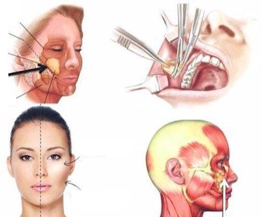 bichectomie
