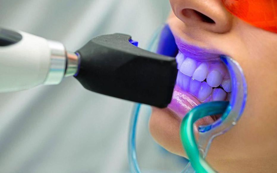 blanchiment des dents prix