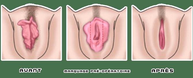 labioplastie avant après