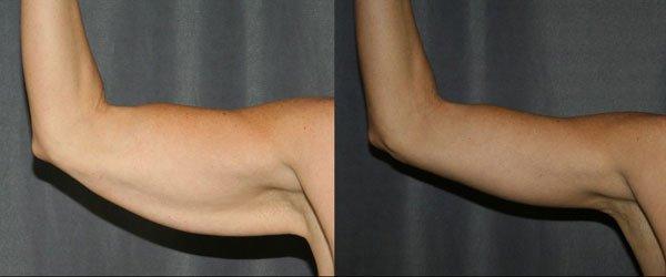 lifting bras avant apres
