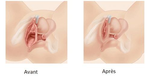 vaginoplastie avant après