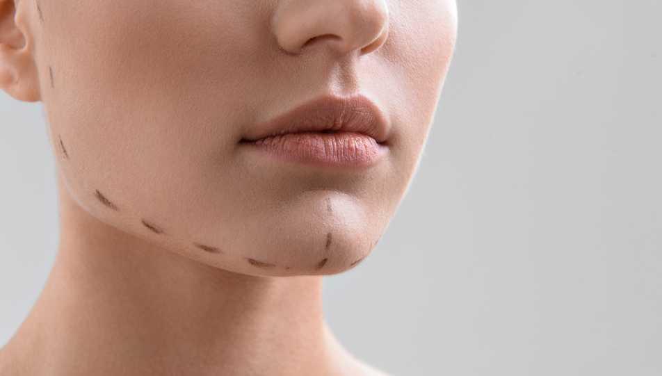 chirurgie esthetique du menton