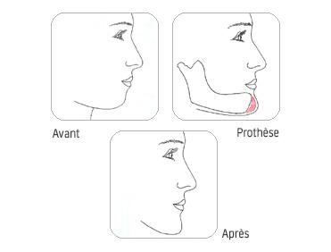 prothese-menton